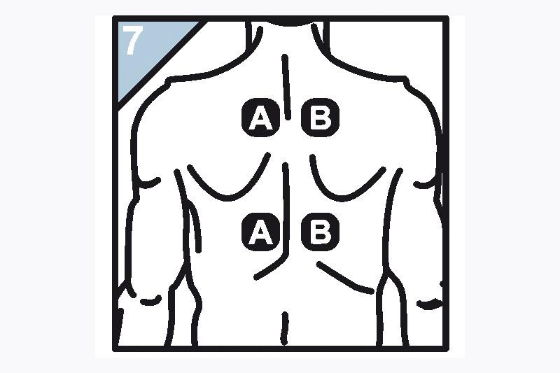 Schaubild Elektrodenanlage hintere mittlere Schulterpartie