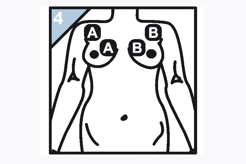 Schaubild zur Elektrodenanlage vordere Schulter/Brust