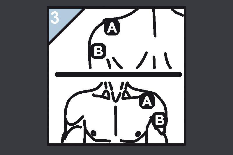 Schaubild Elektrodenanlage Schulter