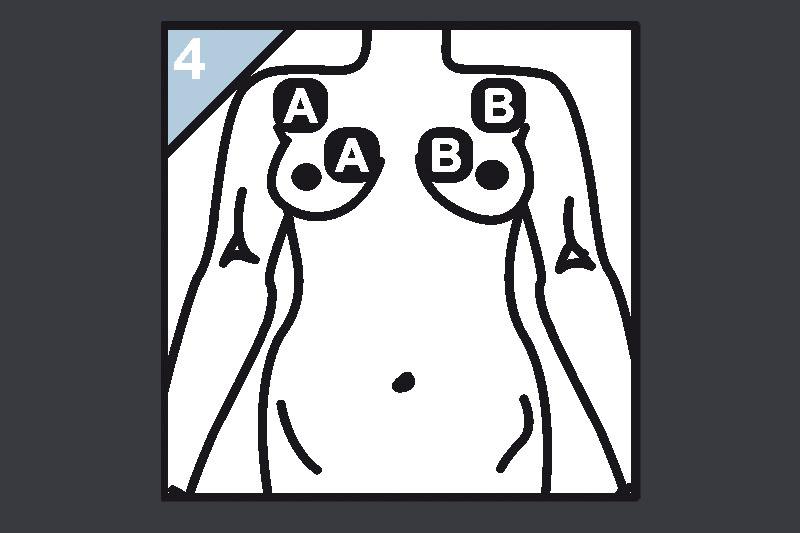 Schaubild Elektrodenanlage Brust
